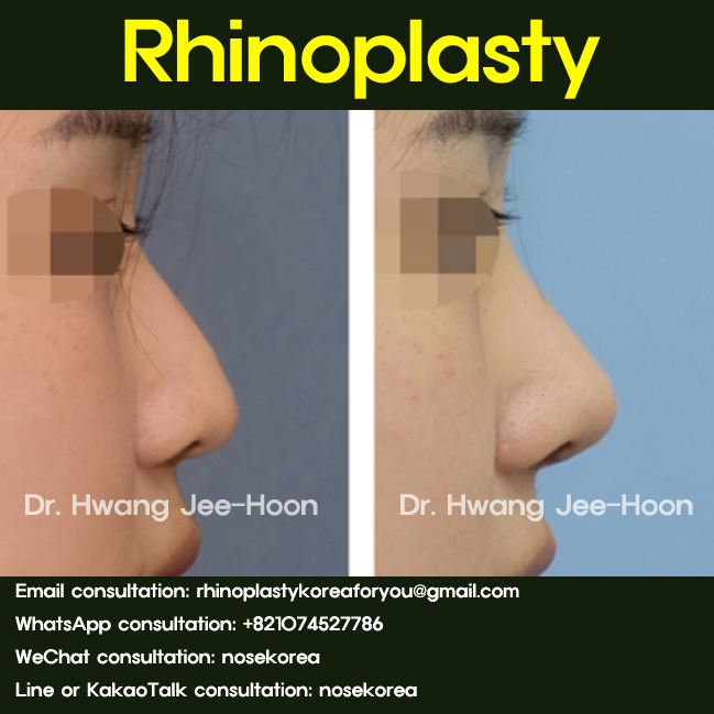 Small nasal hump removal with rhinoplasty