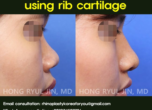 Augmentation rhinoplasty using rib cartilage