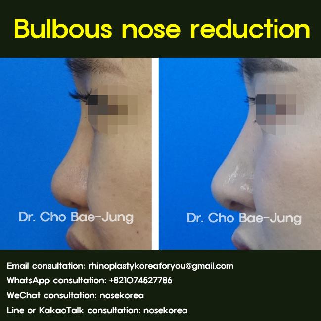 Bulbous nose reduction