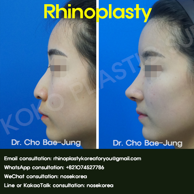 Rhinoplasty before and after Asian