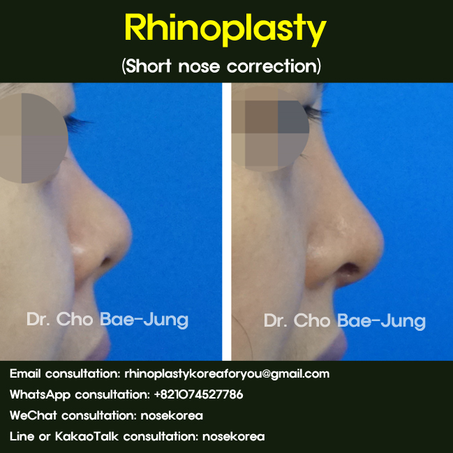 Lengthening the short nose rhinoplasty_side_angle