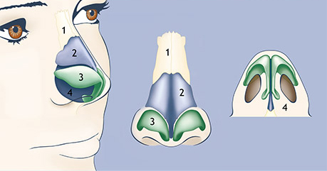 Nasal tip cartilage correction