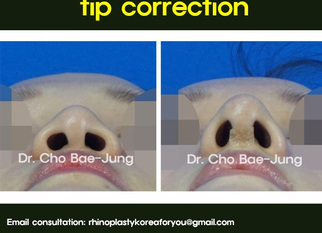 The wide and flat nose tip correction