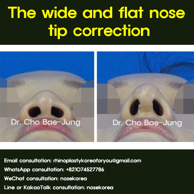 wide flat nose tip correction