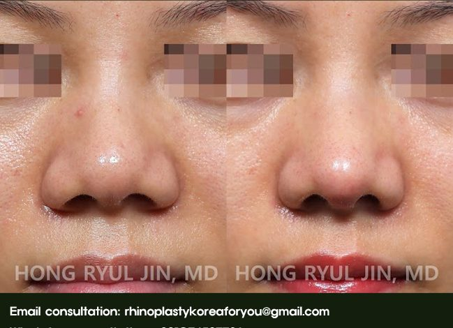 Nasal tip refinement before and after