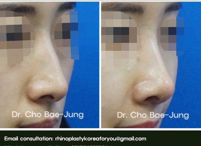 nasal hump removal rhinoplasty Korea