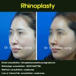 Tip plasty for long nose correction