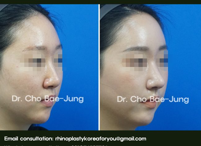 low and short nose tip rhinoplasty