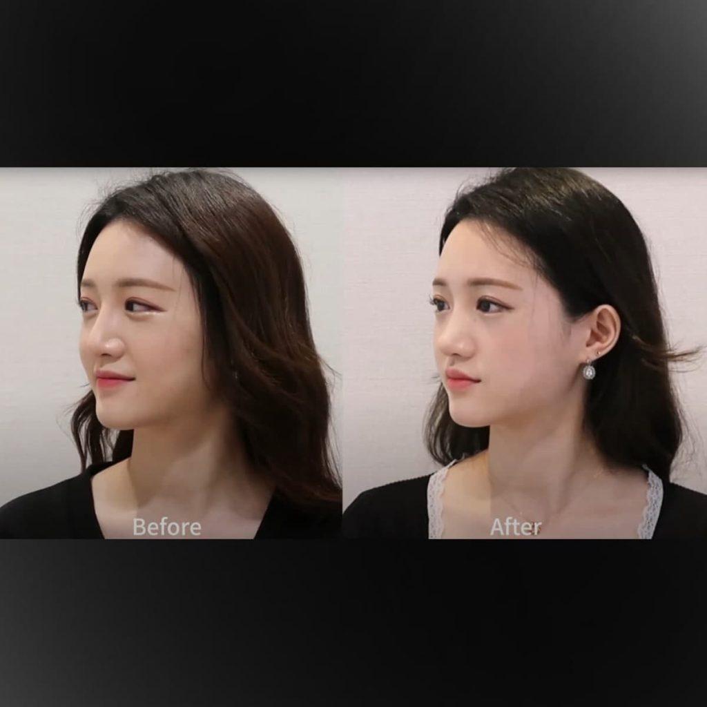 review video of rhinoplasty & cheekbone reduction at South Korea