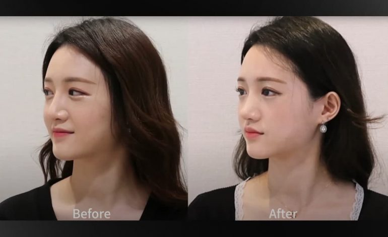 A review video of rhinoplasty & cheekbone reduction at South Korea